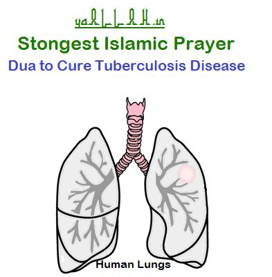 Islamic Prayer Strongest Dua to Cure Tuberculosis Disease-yaALLAH.in